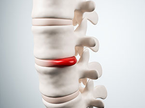 Patient suffering with herniated disc